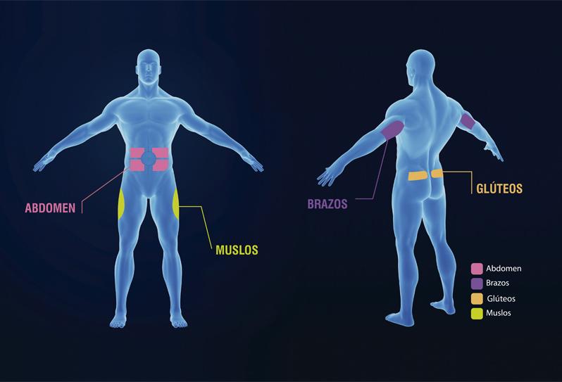 rotacion-inyeccion-diabetrics.jpg